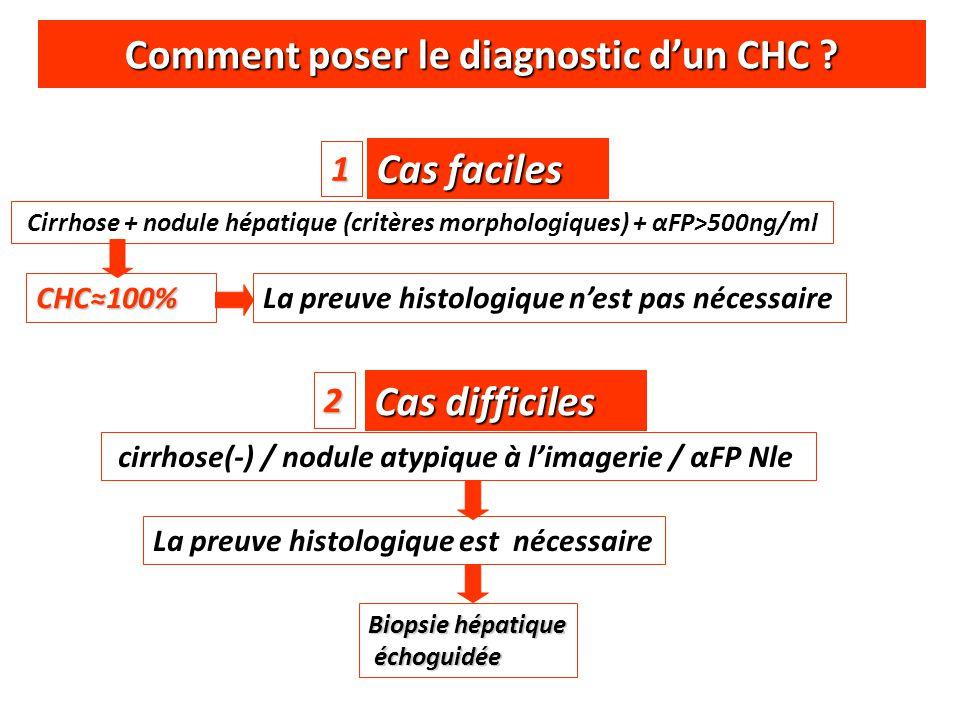 Comment poser le diagnostic d'un CHC ? Cas faciles Cirrhose + nodule hépatique (critères morphologiques) + αFP>500ng/ml CHC≈100% La preuve histologiqu