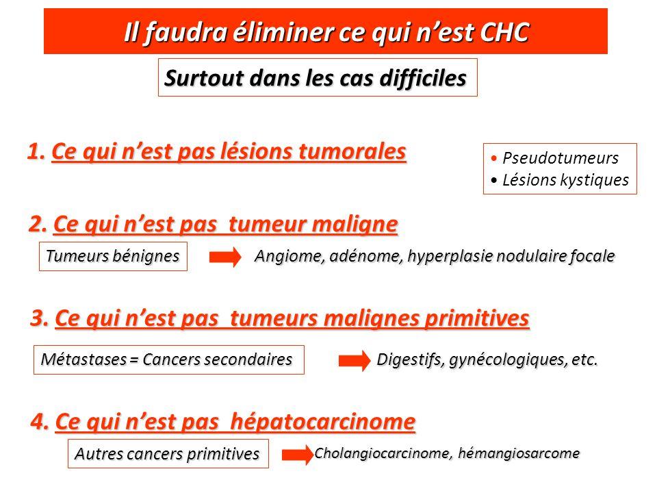 Il faudra éliminer ce qui n'est CHC Surtout dans les cas difficiles 1.Ce qui n'est pas lésions tumorales Pseudotumeurs Lésions kystiques 2.Ce qui n'es