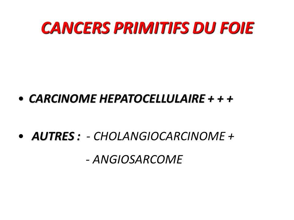 CARCINOME HEPATOCELLULAIRE = HEPATOCARCINOME