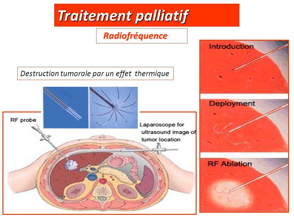 Traitement palliatif Radiofréquence Radiofréquence Destruction tumorale par un effet thermique