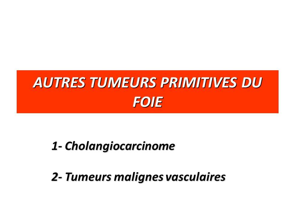 AUTRES TUMEURS PRIMITIVES DU FOIE 1- Cholangiocarcinome 2- Tumeurs malignes vasculaires