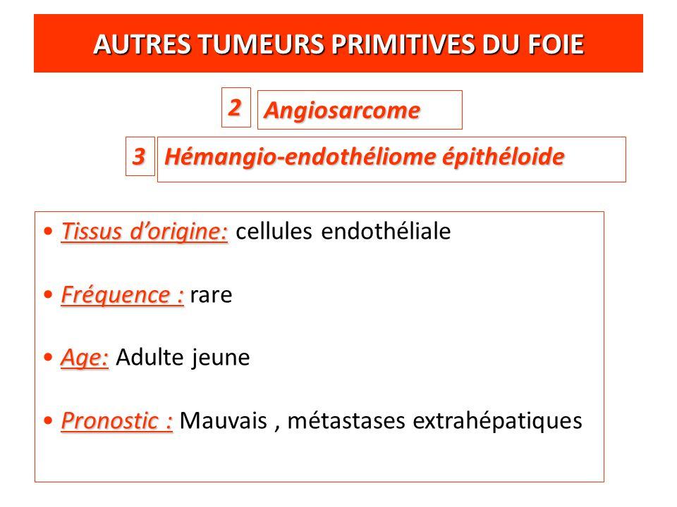 AUTRES TUMEURS PRIMITIVES DU FOIE Hémangio-endothéliome épithéloide Angiosarcome 2 3 Tissus d'origine: Tissus d'origine: cellules endothéliale Fréquen