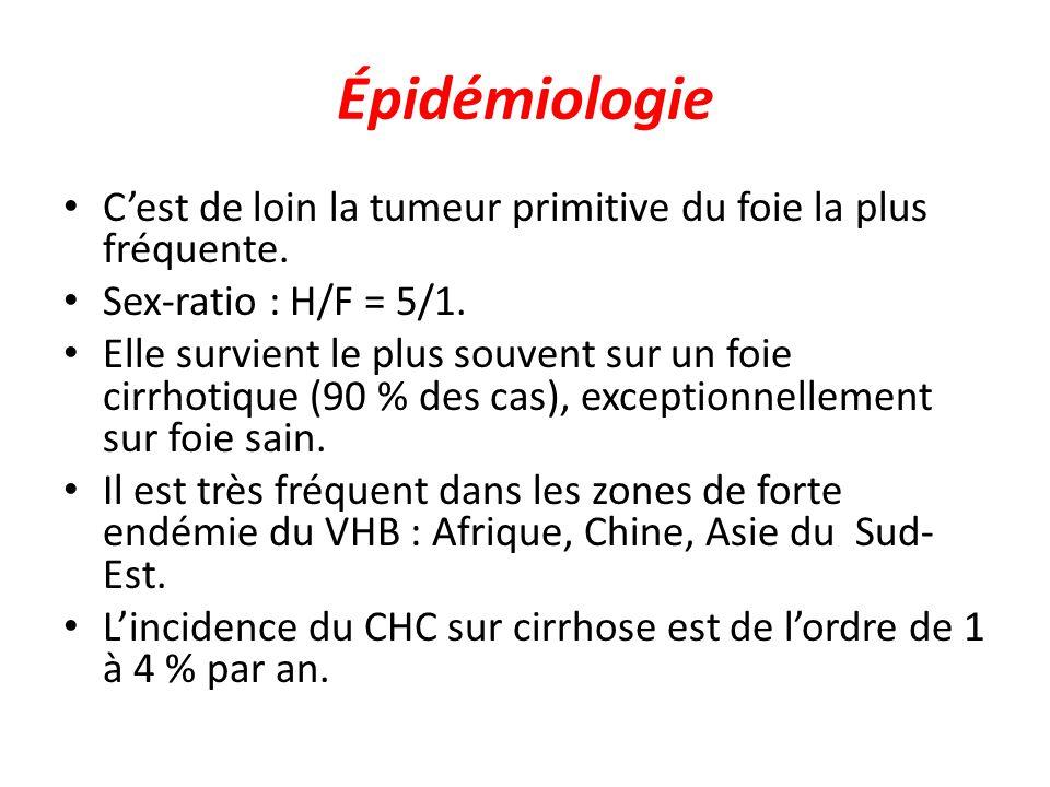Épidémiologie C'est de loin la tumeur primitive du foie la plus fréquente. Sex-ratio : H/F = 5/1. Elle survient le plus souvent sur un foie cirrhotiqu