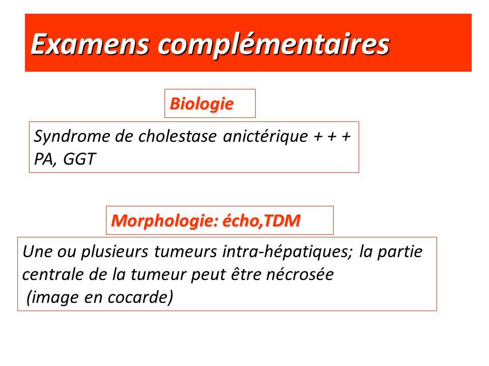 Examens complémentaires Biologie Syndrome de cholestase anictérique + + + PA, GGT Morphologie: écho,TDM Une ou plusieurs tumeurs intra-hépatiques; la