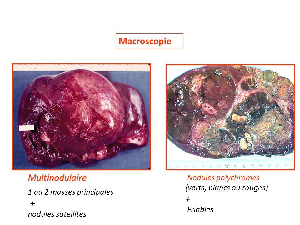 Macroscopie Multinodulaire 1 ou 2 masses principales + nodules satellites Nodules polychromes (verts, blancs ou rouges) + Friables
