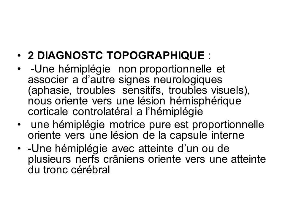 2 DIAGNOSTC TOPOGRAPHIQUE : -Une hémiplégie non proportionnelle et associer a d'autre signes neurologiques (aphasie, troubles sensitifs, troubles visu