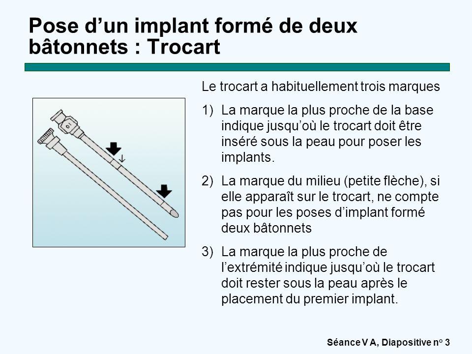 Séance V A, Diapositive n o 14 Pose d'un implant formé de deux bâtonnets : Etape 11 Pour placer le second implant, alignez le trocart de telle sorte que le second implant soit placé à un angle d'environ 30 degrés du premier.