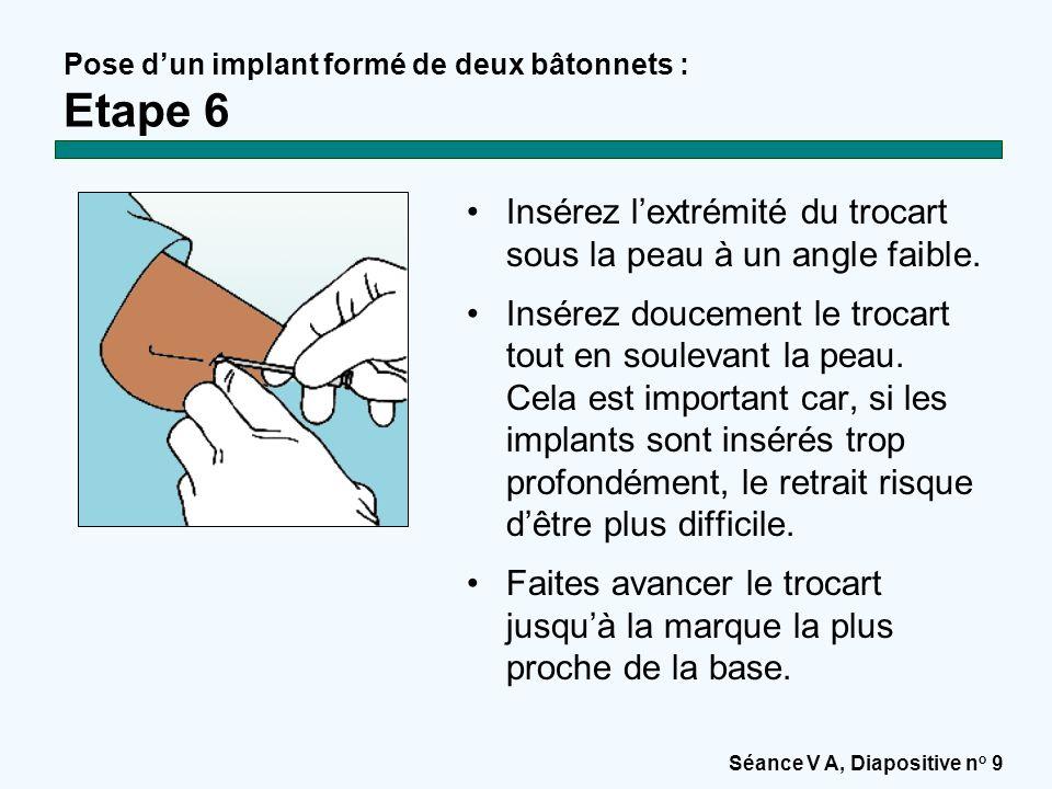 Séance V A, Diapositive n o 10 Pose d'un implant formé de deux bâtonnets : Etape 7 Lorsque le trocart a été inséré à la bonne distance, retirez l'obturateur et introduisez le premier implant dans le trocart avec le pouce et l'index.