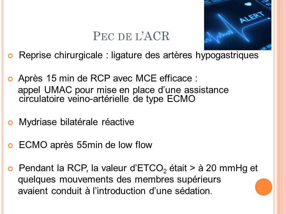 ECMO Héparinothérapie à la demande du chirurgien ETO : VG dilaté et hypokinétique thrombus dans ODte Novoseven à la dose de 90µg/kg pour persistance de l'hémorragie malgré traitement adapté Arrêt des manifestations hémorragiques et maintien d'une hémodynamique satisfaisante Samu et transfert SI CTCV