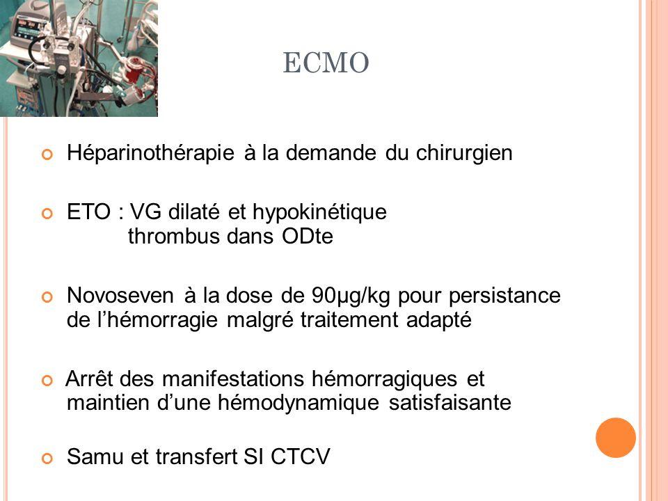 SI CTV A l'arrivée: - Pas de saignement extériorisé - ETO : augmentation taille du thrombus - Fast écho: volumineux épanchement péritonéal Puis rapidement distension abdominale, drains productifs Echo-abdomino-pelvienne : hémopéritoine majeur Reprise chirurgicale : évacuation d'un hémopéritoine d'environ 5 L et mise en place d'un packing abdomino-pelvien avec support transfusionnel massif per et post opératoire ETO per-opératoire : disparition du thrombus et récupération de la fonction myocardique compatible avec un sevrage de l'assistance circulatoire (FEVG 30%, pas de signe de cœur pulmonaire).