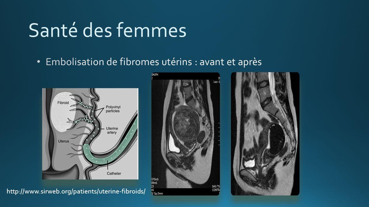 Santé des femmes http://www.sirweb.org/patients/uterine-fibroids/