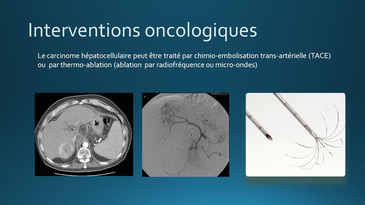 http://patients.uroweb.org/kidney- ureteral-stones/emergency/