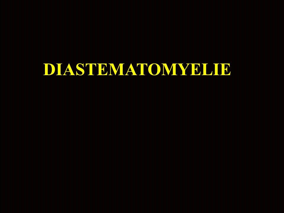 Diastématomyélie Petite méningocèle Cure chirurgicale à 2 mois - section des adhérences reliant la face postérieure de la moelle aux méninges Suites opératoires simples Examen normal à 7 ans