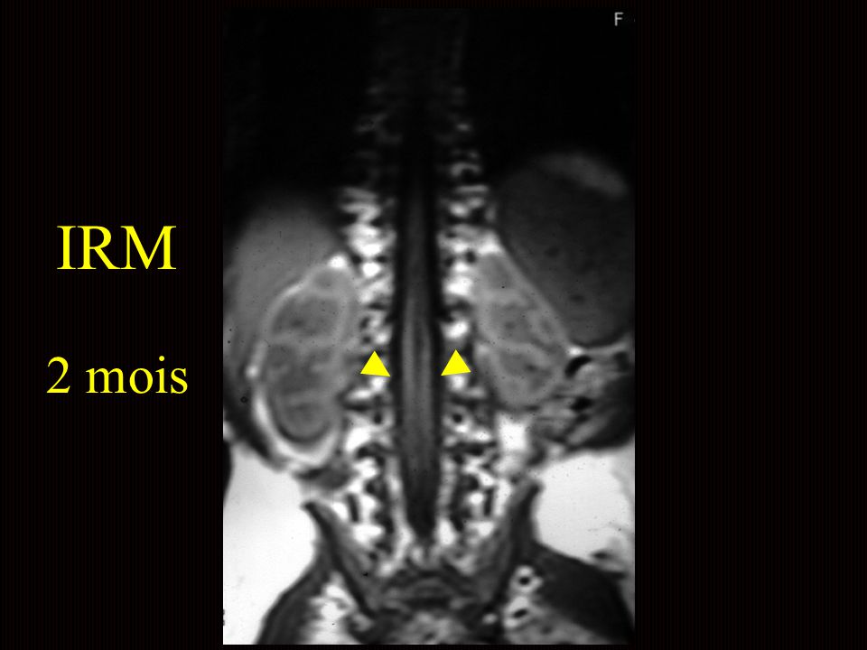 IRM 2 mois