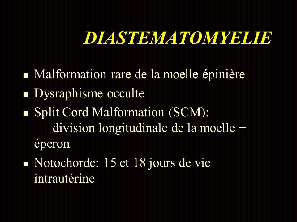n Malformation rare de la moelle épinière n Dysraphisme occulte n Split Cord Malformation (SCM): division longitudinale de la moelle + éperon n Notochorde: 15 et 18 jours de vie intrautérine