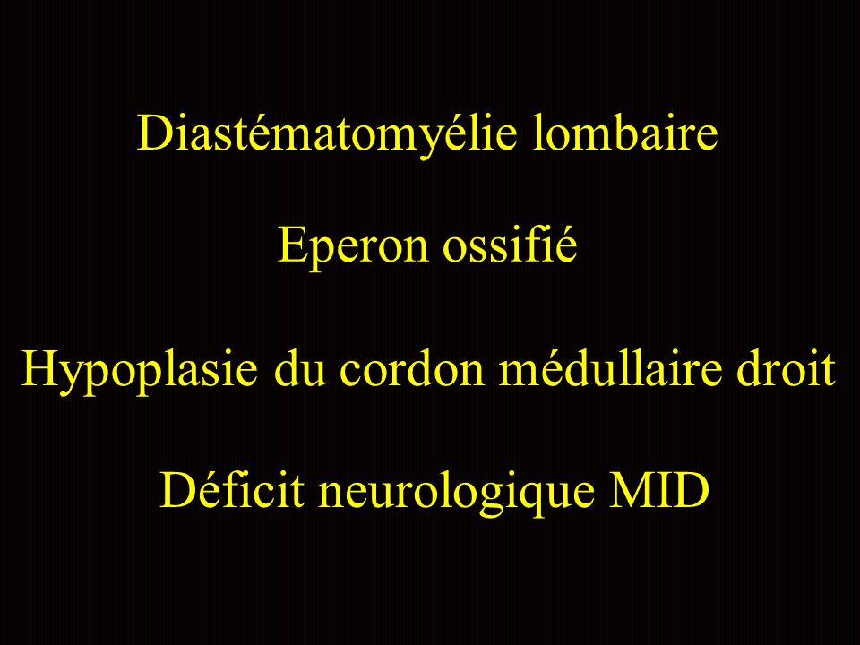 Diastématomyélie lombaire Eperon ossifié Hypoplasie du cordon médullaire droit Déficit neurologique MID