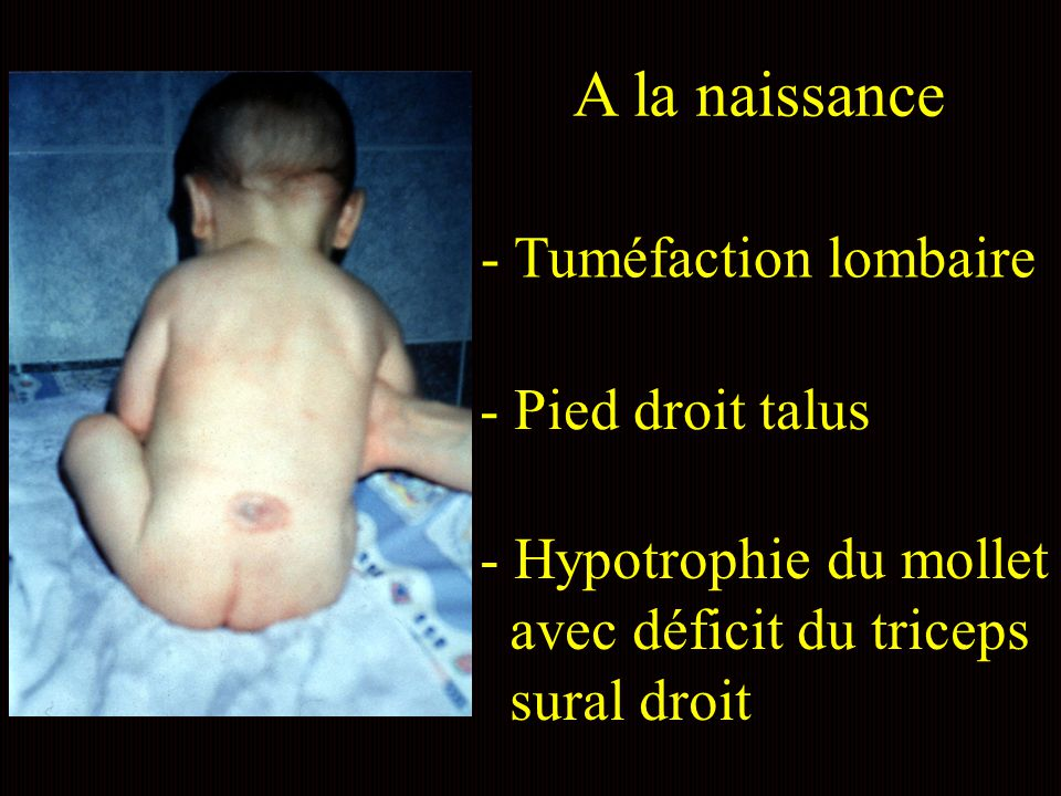- Tuméfaction lombaire A la naissance - Pied droit talus - Hypotrophie du mollet avec déficit du triceps sural droit