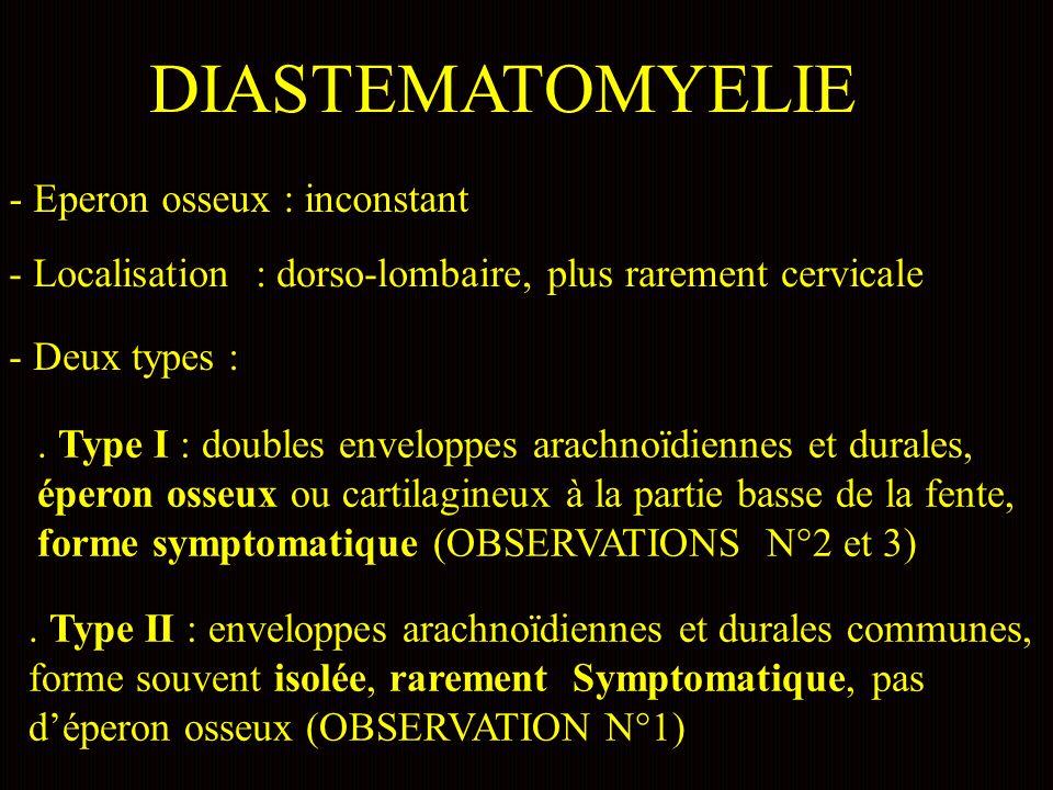 DIASTEMATOMYELIE - Eperon osseux : inconstant - Localisation : dorso-lombaire, plus rarement cervicale - Deux types :.