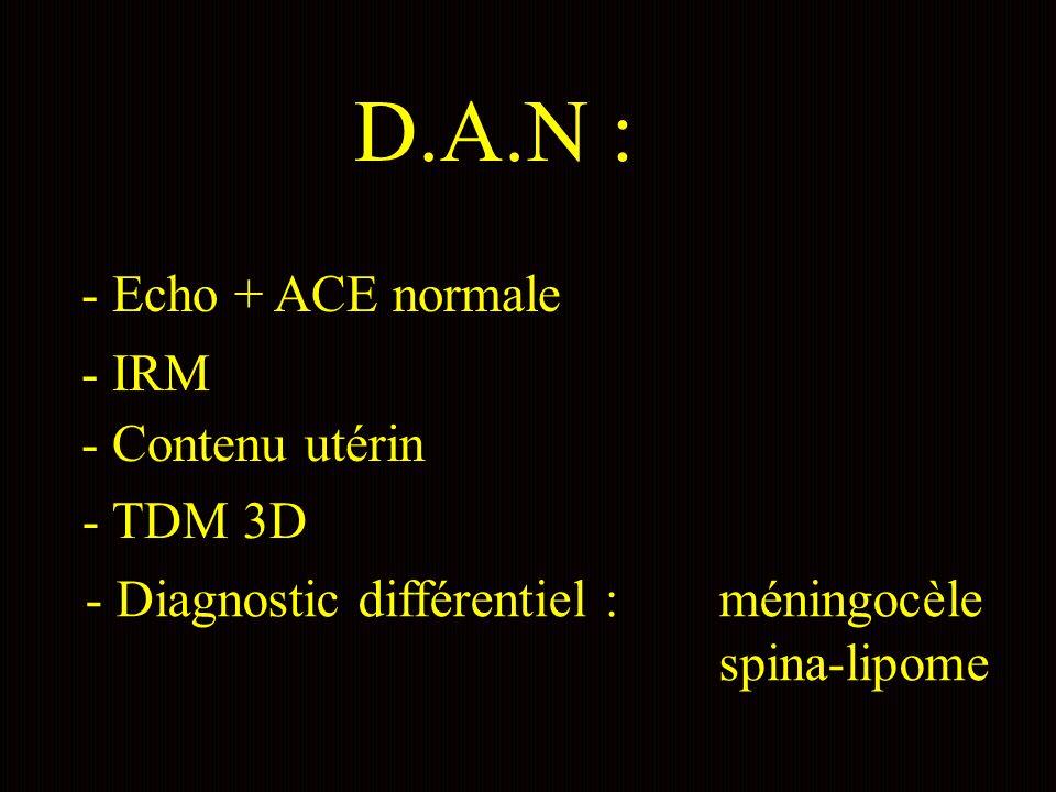 D.A.N : - Echo + ACE normale - IRM - Contenu utérin - TDM 3D - Diagnostic différentiel : méningocèle spina-lipome