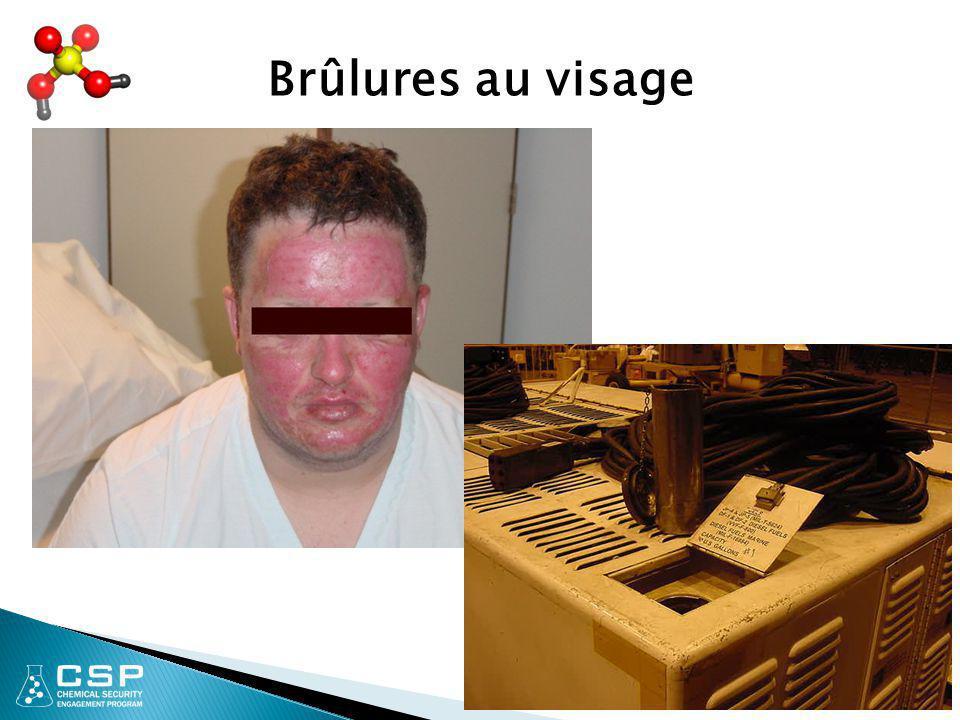 8 Brûlures au visage