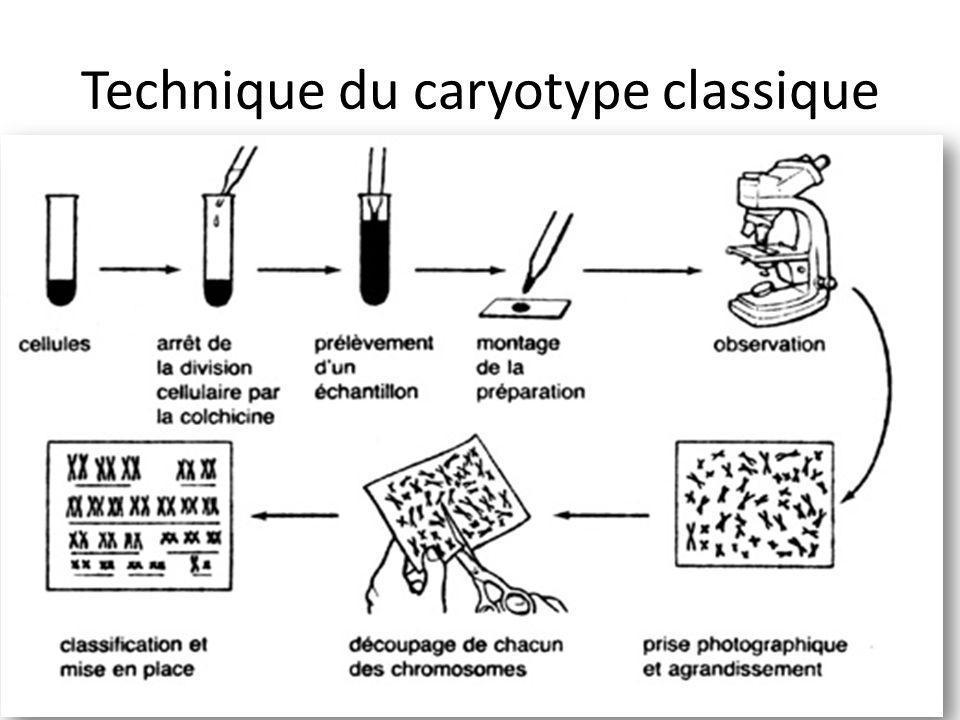 Technique du caryotype classique