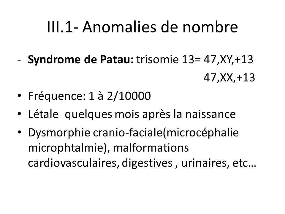 III.1- Anomalies de nombre -Syndrome de Patau: trisomie 13= 47,XY,+13 47,XX,+13 Fréquence: 1 à 2/10000 Létale quelques mois après la naissance Dysmorp