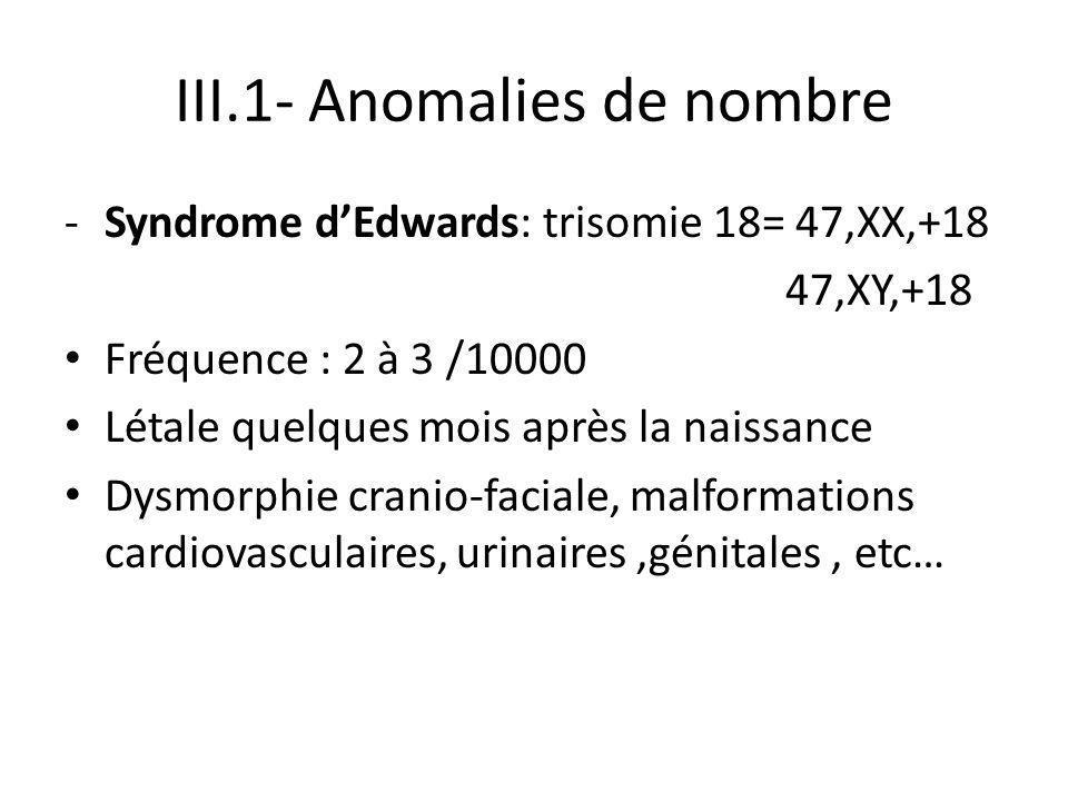 III.1- Anomalies de nombre -Syndrome d'Edwards: trisomie 18= 47,XX,+18 47,XY,+18 Fréquence : 2 à 3 /10000 Létale quelques mois après la naissance Dysm