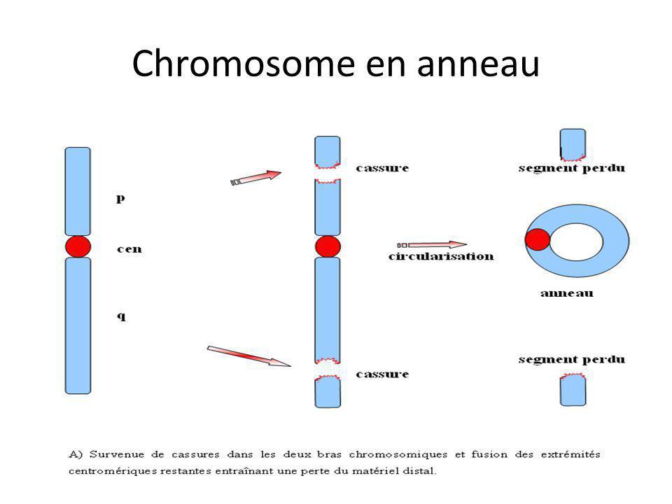 Chromosome en anneau