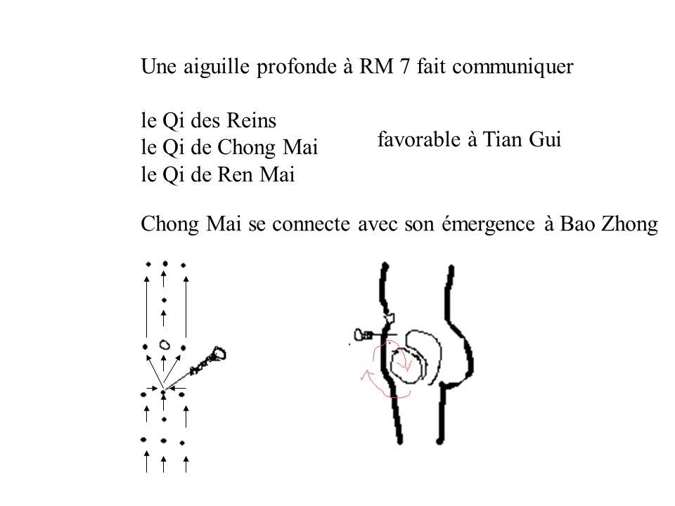 Une aiguille profonde à RM 7 fait communiquer le Qi des Reins le Qi de Chong Mai le Qi de Ren Mai favorable à Tian Gui Chong Mai se connecte avec son