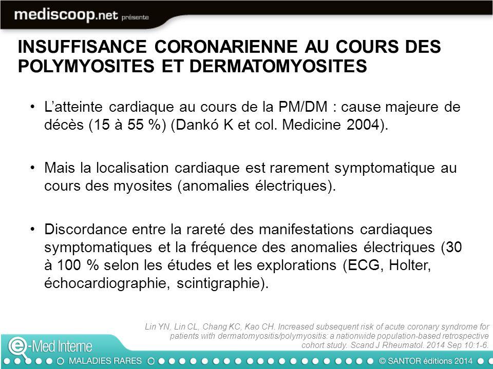 INSUFFISANCE CORONARIENNE AU COURS DES POLYMYOSITES ET DERMATOMYOSITES Les myocardites, en règle asymptomatiques également, varient selon les études autopsiques, entre 20 et 60 % des cas.