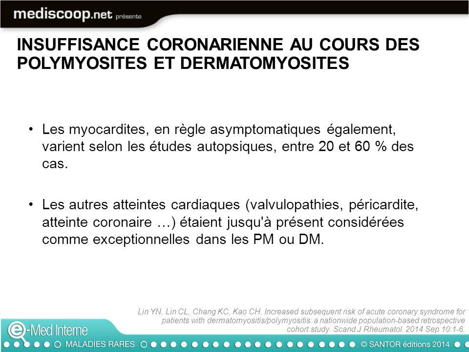 INSUFFISANCE CORONARIENNE AU COURS DES POLYMYOSITES ET DERMATOMYOSITES Les myocardites, en règle asymptomatiques également, varient selon les études a