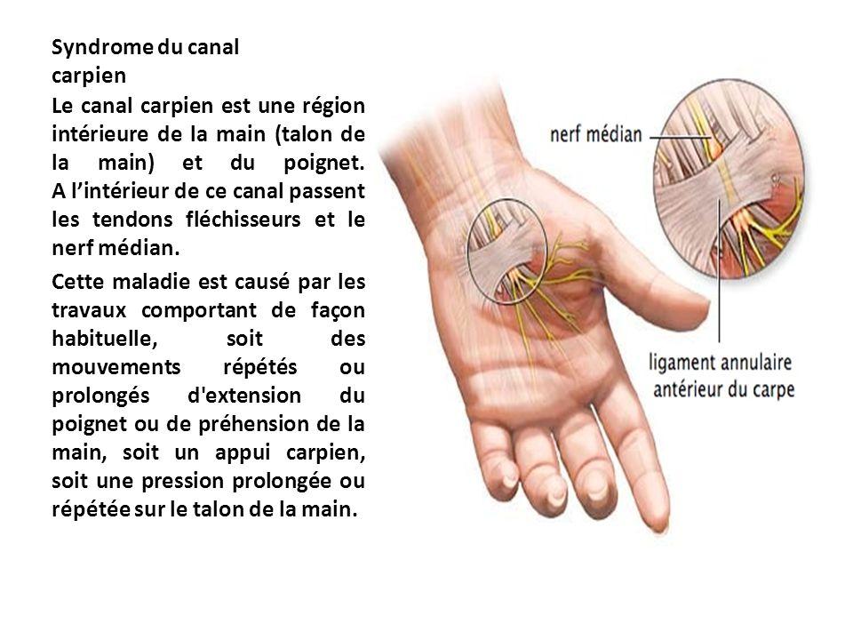 Syndrome du canal carpien Le canal carpien est une région intérieure de la main (talon de la main) et du poignet. A l'intérieur de ce canal passent le