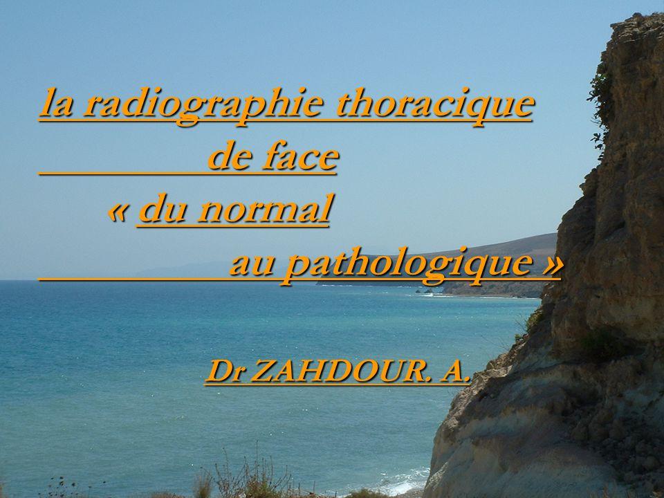 la radiographie thoracique de face « du normal au pathologique » Dr ZAHDOUR. A.