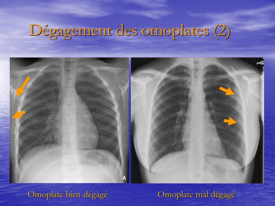 Dégagement des omoplates (2) Dégagement des omoplates (2) Omoplate bien dégagé Omoplate mal dégagé