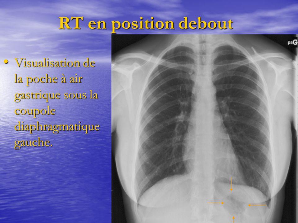 RT en position debout RT en position debout Visualisation de la poche à air gastrique sous la coupole diaphragmatique gauche. Visualisation de la poch
