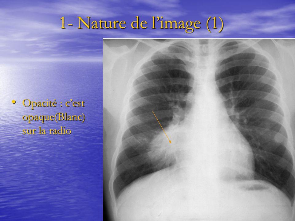 1- Nature de l'image (1) 1- Nature de l'image (1) Opacité : c'est opaque(Blanc) sur la radio Opacité : c'est opaque(Blanc) sur la radio
