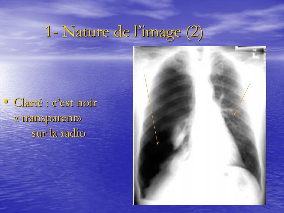 1- Nature de l'image (2) 1- Nature de l'image (2) Clarté : c'est noir « transparent» sur la radio Clarté : c'est noir « transparent» sur la radio