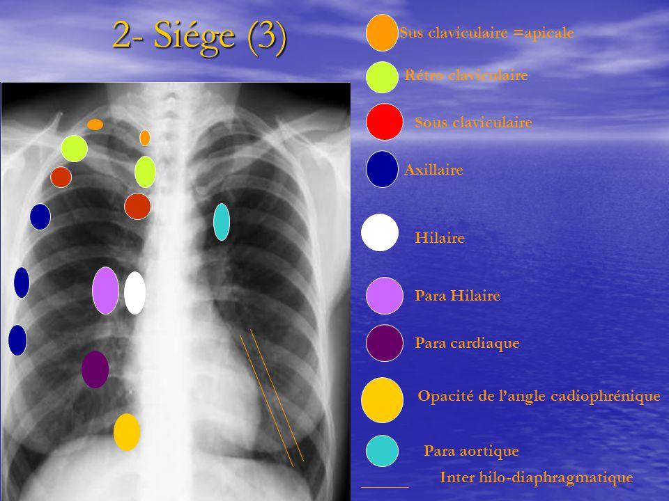 2- Siége (3) 2- Siége (3) Sus claviculaire =apicale Rétro claviculaire Sous claviculaire Axillaire Hilaire Para Hilaire Para cardiaque Opacité de l'an