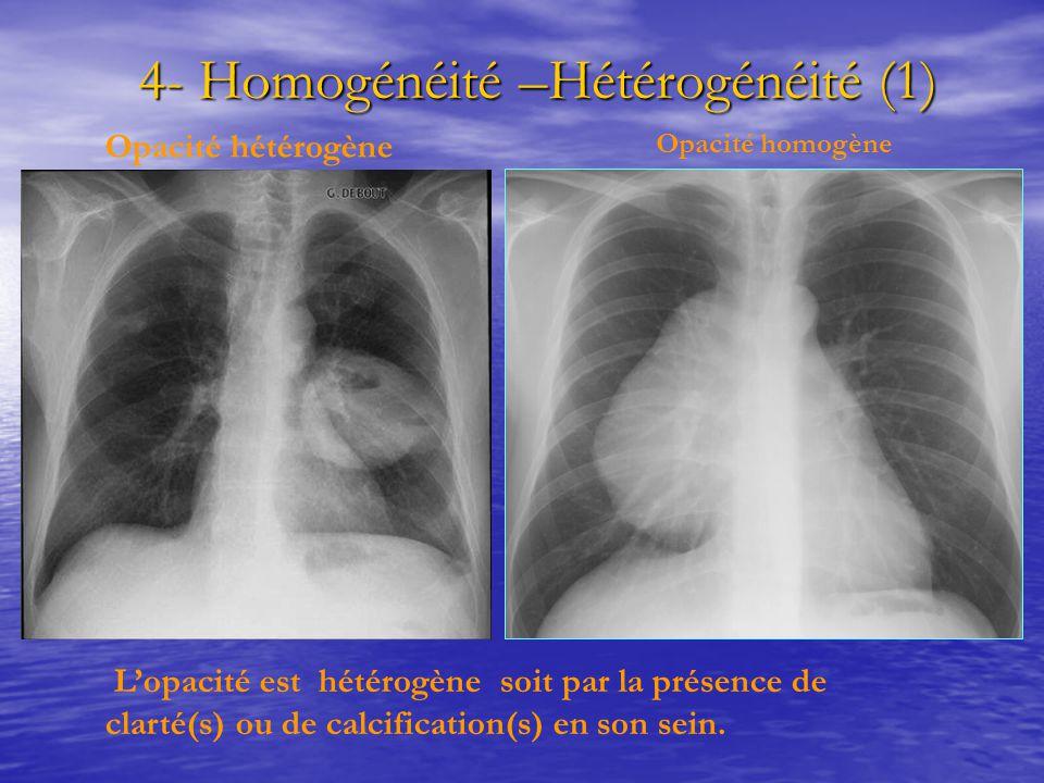 4- Homogénéité –Hétérogénéité (1) 4- Homogénéité –Hétérogénéité (1) L'opacité est hétérogène soit par la présence de clarté(s) ou de calcification(s)