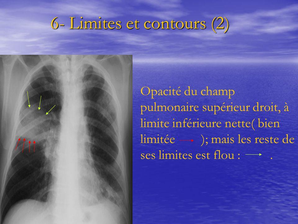 6- Limites et contours (2) 6- Limites et contours (2) Opacité du champ pulmonaire supérieur droit, à limite inférieure nette( bien limitée ); mais les