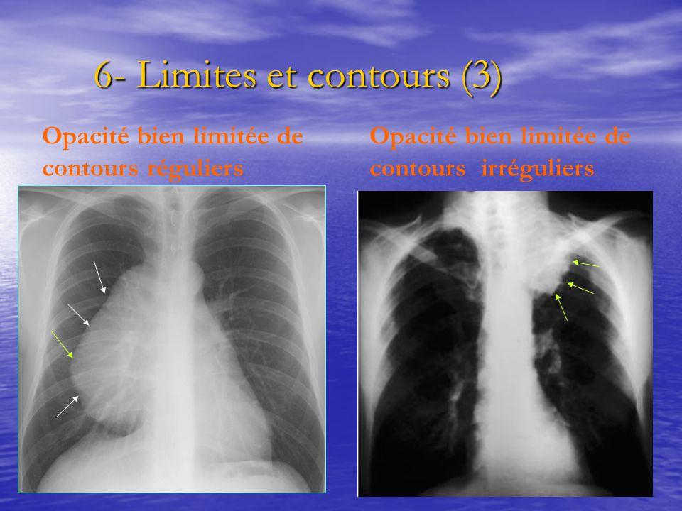 6- Limites et contours (3) 6- Limites et contours (3) Opacité bien limitée de contours réguliers Opacité bien limitée de contours irréguliers