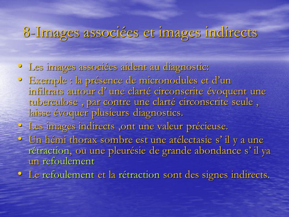 8-Images associées et images indirects 8-Images associées et images indirects Les images associées aident au diagnostic: Les images associées aident a