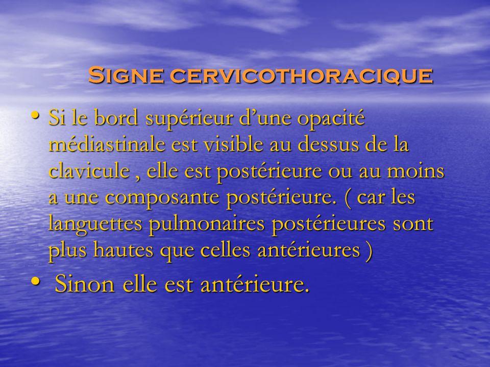 Si le bord supérieur d'une opacité médiastinale est visible au dessus de la clavicule, elle est postérieure ou au moins a une composante postérieure.