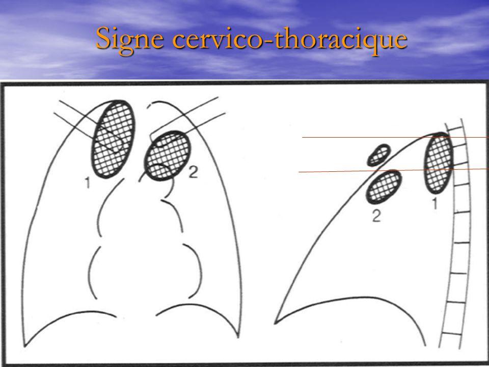 Signe cervico-thoracique Signe cervico-thoracique