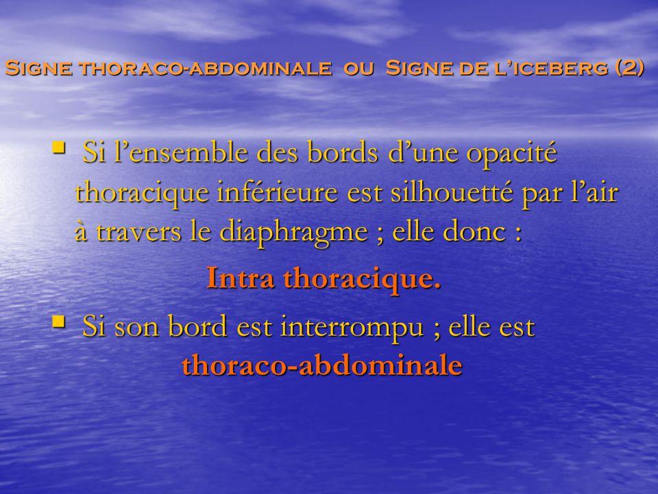  Si l'ensemble des bords d'une opacité thoracique inférieure est silhouetté par l'air à travers le diaphragme ; elle donc : Intra thoracique. Intra t