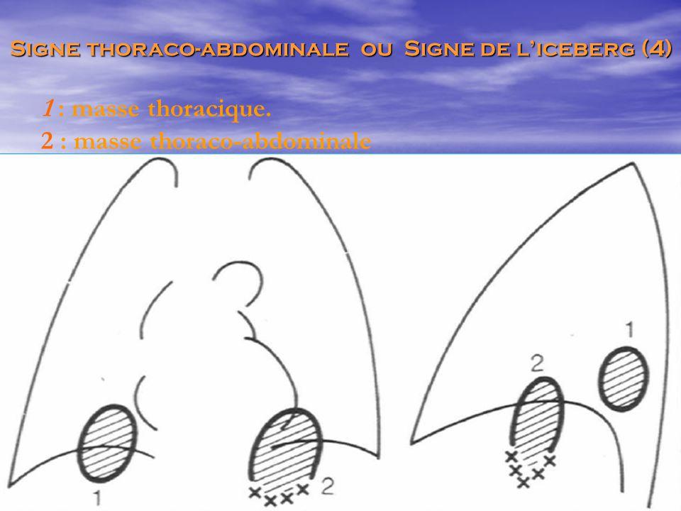 1 : masse thoracique. 2 : masse thoraco-abdominale Signe thoraco-abdominale ou Signe de l'iceberg (4)