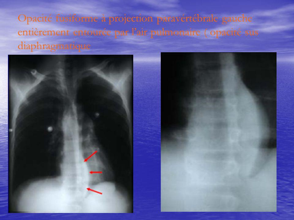 Opacité fusiforme à projection paravértébrale gauche entièrement entourée par l'air pulmonaire ( opacité sus diaphragmatique