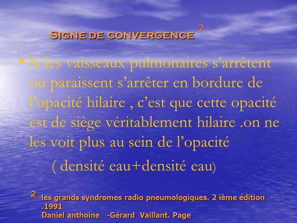 Signe de convergence Signe de convergence Si les vaisseaux pulmonaires s'arrêtent ou paraissent s'arrêter en bordure de l'opacité hilaire, c'est que c
