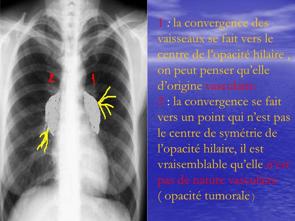 1 : la convergence des vaisseaux se fait vers le centre de l'opacité hilaire, on peut penser qu'elle d'origine vasculaire. 2 : la convergence se fait
