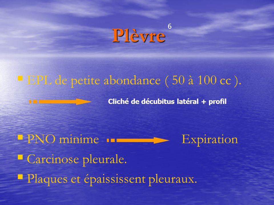 Plèvre Plèvre   EPL de petite abondance ( 50 à 100 cc ).   PNO minime Expiration   Carcinose pleurale.   Plaques et épaississent pleuraux. Cli